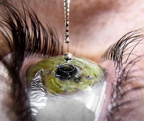 Nhỏ thuốc nhỏ mắt nhiều có tốt không? 1
