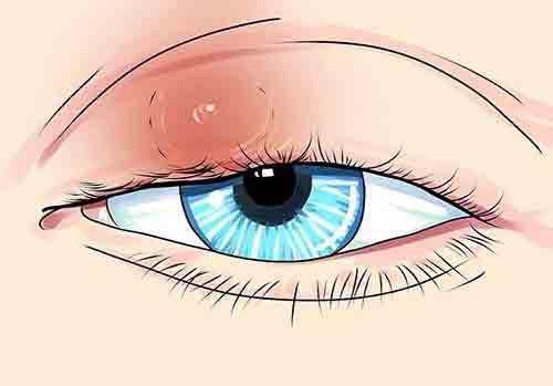 Các triệu chứng nhận biết bị lẹo mắt 2
