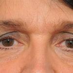 Bệnh lý khô mắt – Kiến thức cần biết