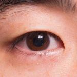 Mắt bị lên lẹo – Không cần quá lo lắng!