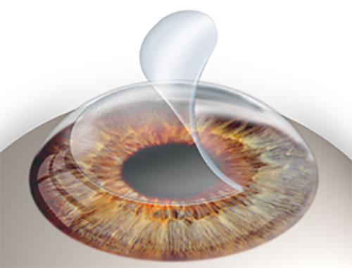 Phẫu thuật khúc xạ bằng Laser Excimer 1
