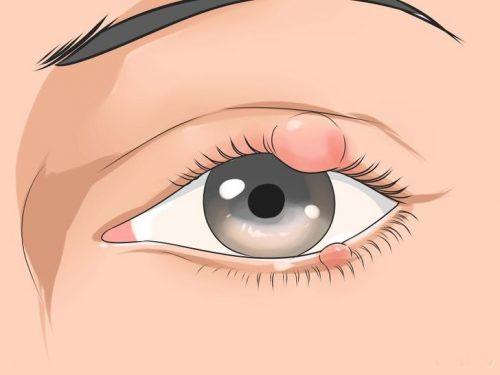 Các triệu chứng nhận biết bị lẹo mắt 1