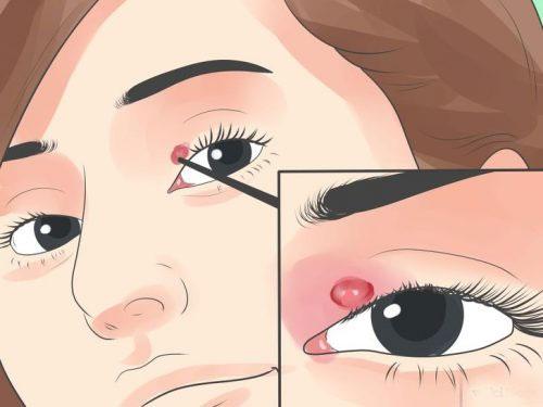 Thế nào là lẹo mắt? 1
