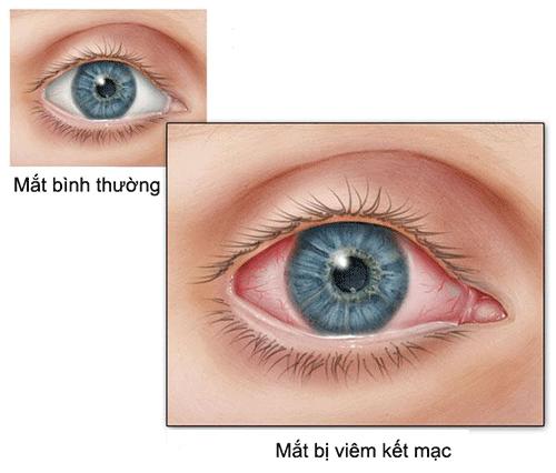 Triệu chứng thường gặp của bệnh đau mắt đỏ là gì? 1