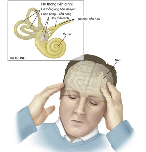 Rối loạn tiền đình 1