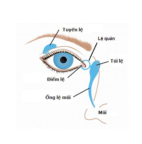 Tắc tuyến lệ 1