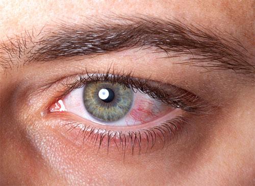 Nguyên nhân gây đau mắt đỏ 1