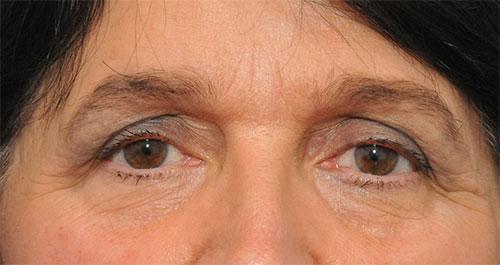 Vì sao lại bị khô mắt? 1