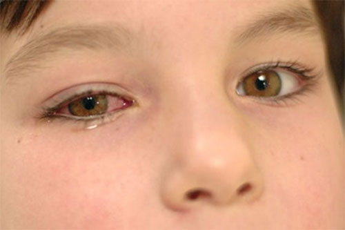 Triệu chứngvà diễn biếncủa bệnh đau mắt đỏ ở trẻ 1
