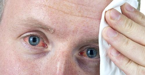 Các hình thái bệnh viêm kết mạc mắt 1