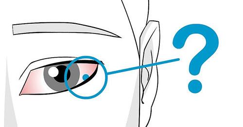 Chớp mắt thấy đau và cộm, đặc biệt lòng trắng mắt có một đám xanh nhạt (ở dưới mi mắt trên) 1