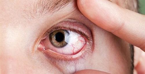 Cộm vướng trong mắt, mí mắt trên bị sưng, chảy nhiều nước mắt, khó chịu khi nhìn thấy ánh sáng và không th� 1