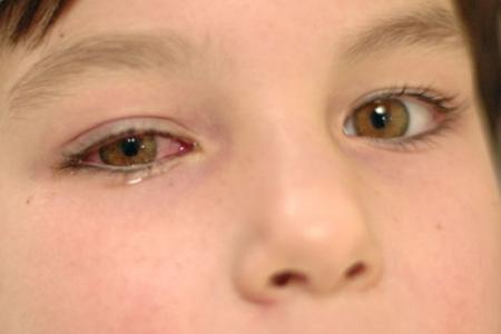 Triệu chứng của viêm giác mạc 1