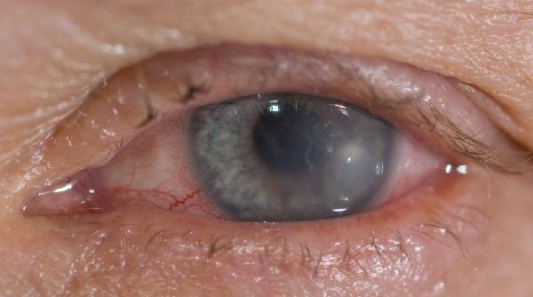 Viêm giác mạc nông (superficial keratitis): 1