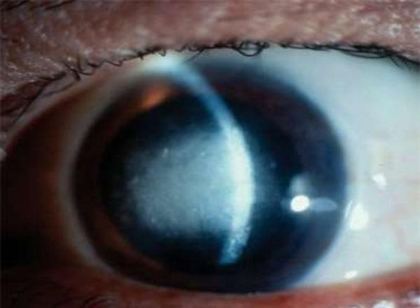 Viêm giác mạc sâu (viêm nhu mô - interstitial keratitis) 1