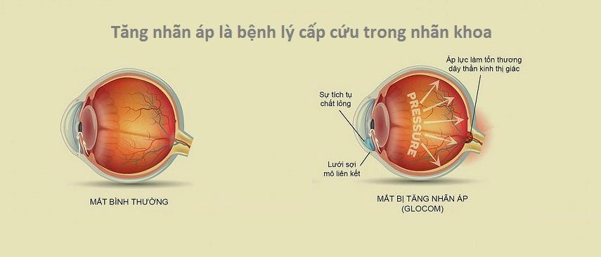 Đỏ mắt kéo dài - Dấu hiệu các bệnh nguy hiểm về mắt 2