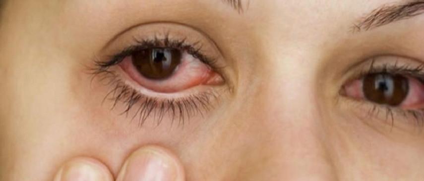 Đỏ mắt kéo dài - Dấu hiệu các bệnh nguy hiểm về mắt 1