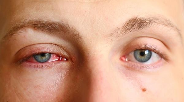 Dấu hiệu và nguyên nhân chủ yếu gây ra viêm kết mạc. 1