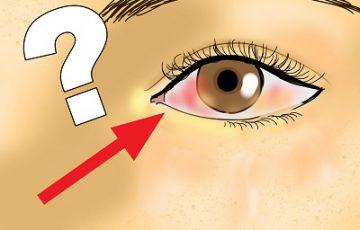 Nguyên nhân chính gây ra bệnh viêm giác mạc sợi
